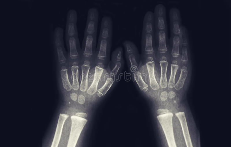 Tomography av litet barnhänder inga patologier royaltyfria bilder