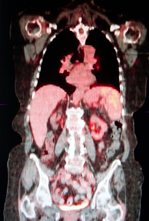 Tomography för Positronutsläpp royaltyfria foton