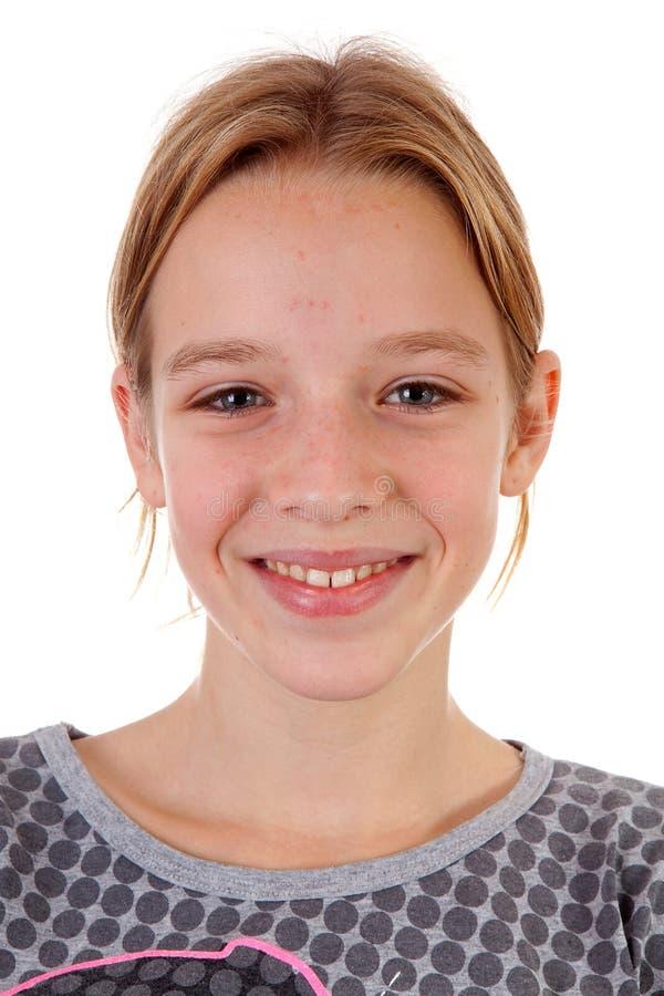 tonårs- flickapimpelsportait arkivfoto