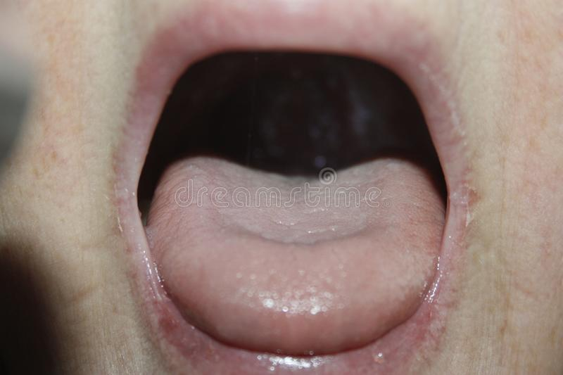 Tongue pain concept of flu and cold royalty free stock image
