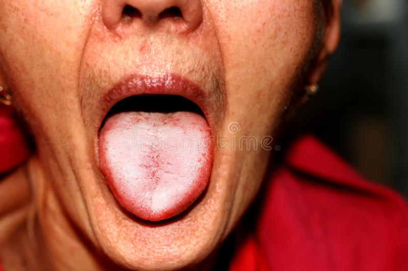 The tongue is in a white raid. Candidiasis in the tongue royalty free stock photo