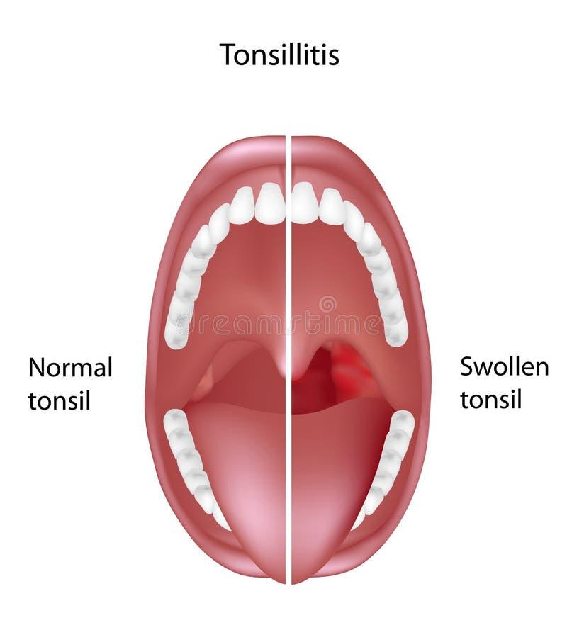 Tonsillite illustrazione di stock