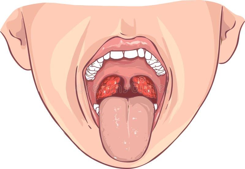 Tonsillite batterica fotografie stock
