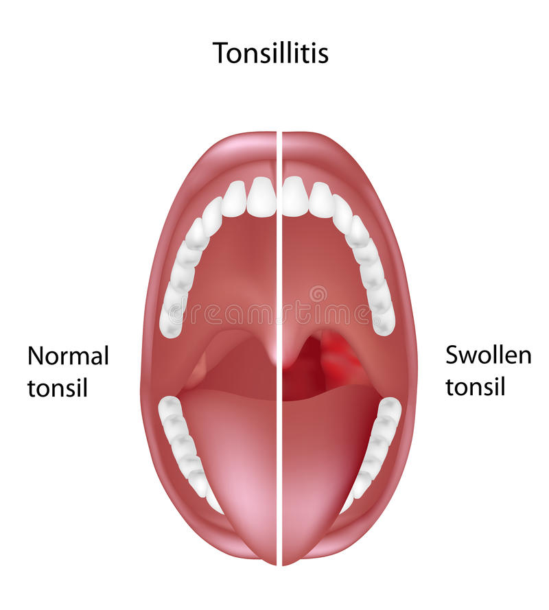 Tonsillitis stock illustration