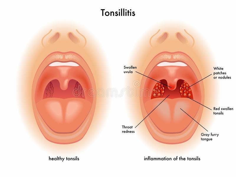 Tonsillitis ilustracja wektor