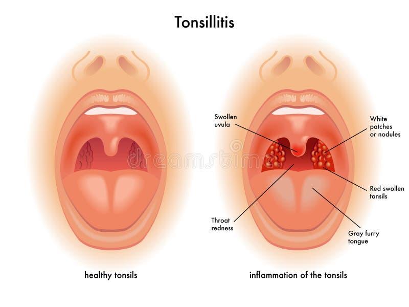 Tonsillitis ilustração do vetor
