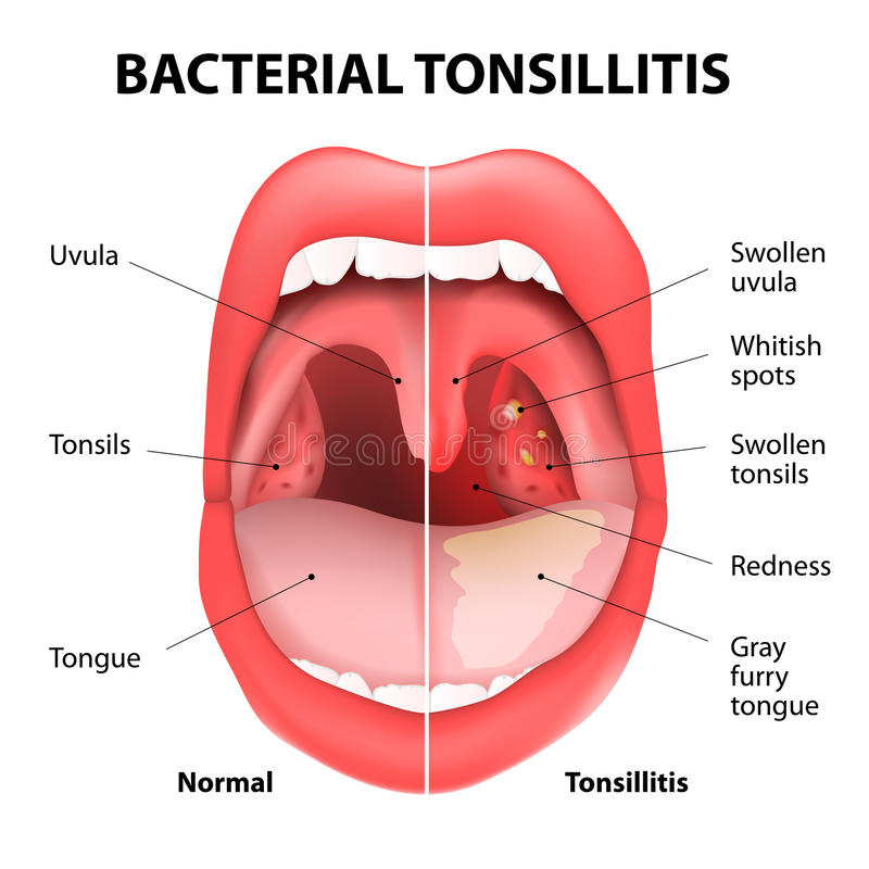 Tonsillitis bacterial. Angina, pharyngitis and tonsillitis. Infection of tonsils caused by virus or bacteria. Recurring and persistent infection of tonsils vector illustration