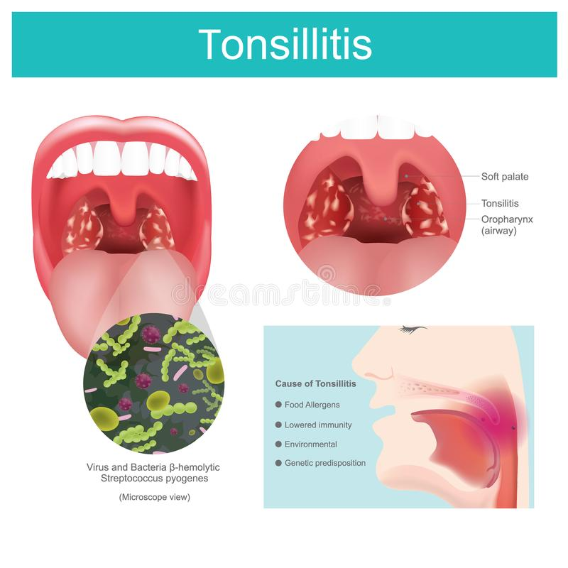 Tonsillitis. Inflammation of the soft tissue in the mouth and pain in swallowing occurs. Illustration. royalty free illustration