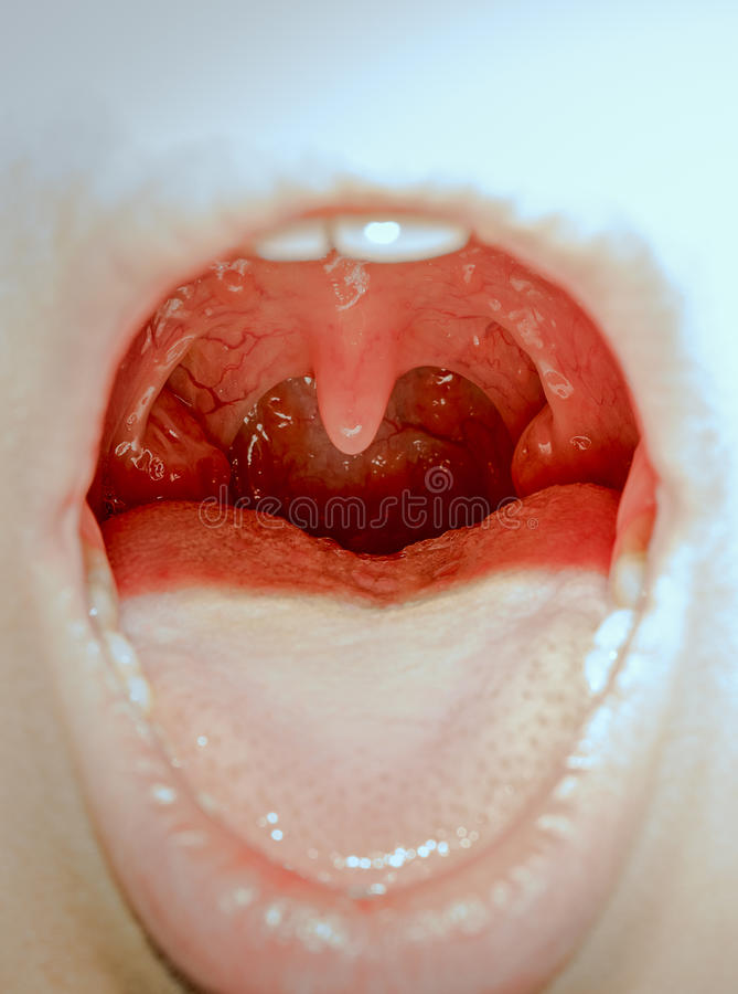 Tonsils. Closeup view of open mouth with tonsils stock photography