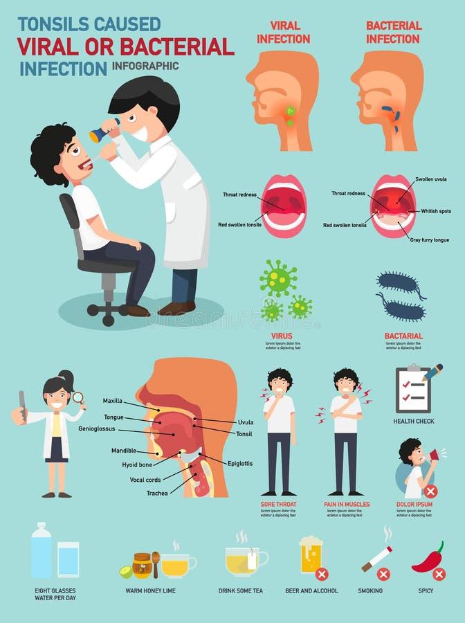 Tonsils powodowali wirusową lub bakteryjną infekcję ilustracja wektor
