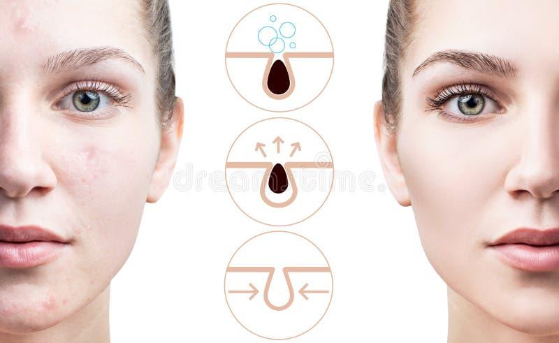 Toont grafisch om de poriën op gezicht te verontreinigen en schoon te maken royalty-vrije stock fotografie