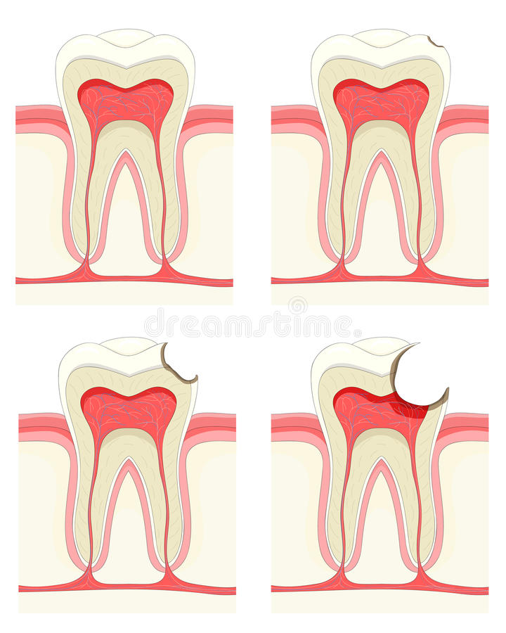 Download Tooth stock vector. Image of mouth, continuity, medical - 18344983