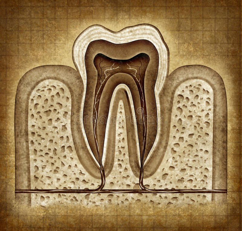 Tooth Anatomy In Grunge Texture. Tooth inner anatomy old grunge parchment diagram as a dentist surgeon teeth symbol for dental clinic and oral specialist royalty free illustration