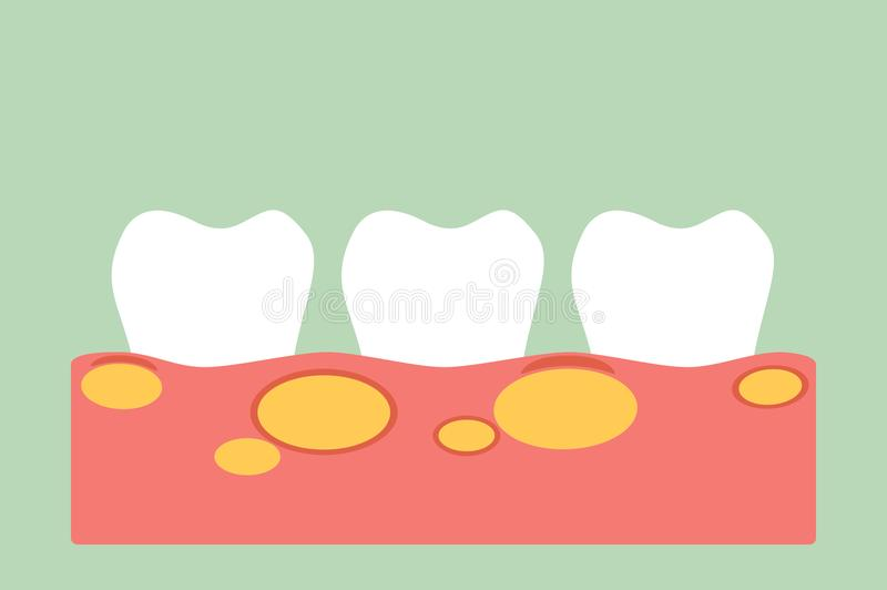 Unhealthy teeth because gingivitis with abscess in gum and dental plaque or tartar. Tooth cartoon vector flat style for design - unhealthy teeth because stock illustration
