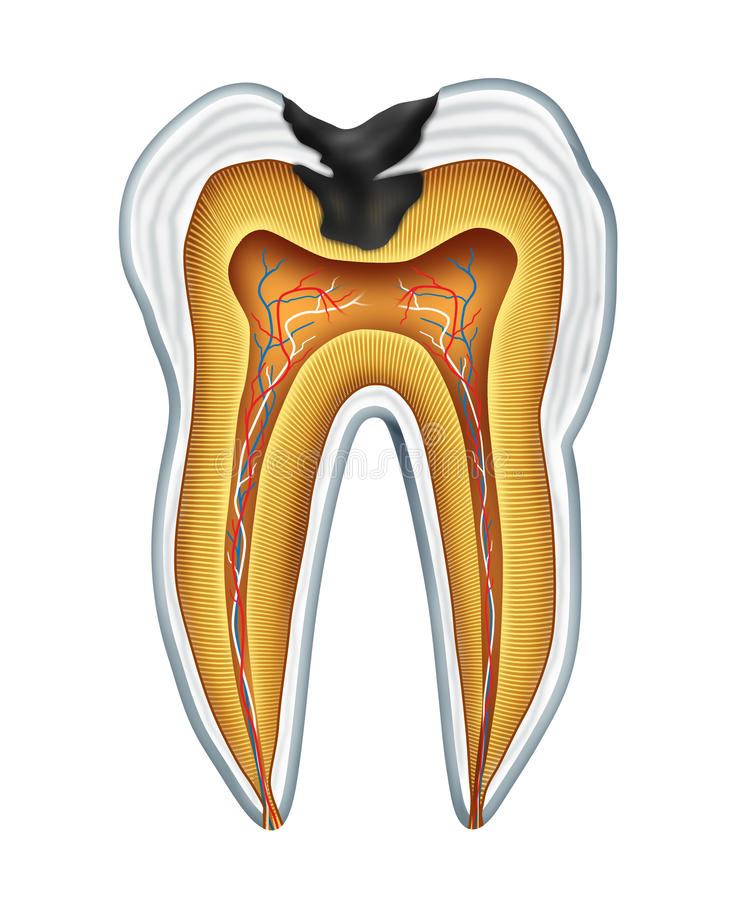 Tooth cavity. Tooth cavites symbol showing the medical cross section anatomy of teeth with a cavity in decay due to poor bacteria and acids in oral health care royalty free illustration