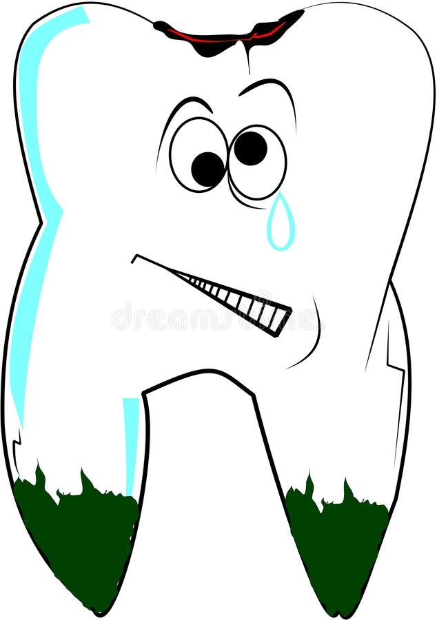 Download Tooth with cavity stock vector. Image of health, medical - 23018688