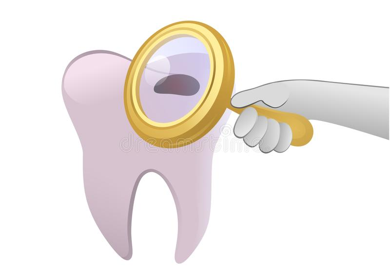 Tooth cavity. Vector illustration of a damaged tooth under lupe stock illustration