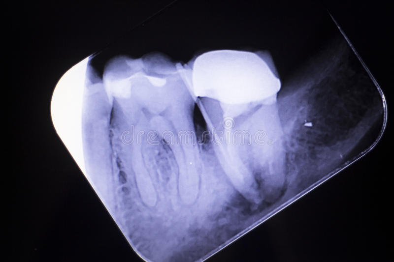 Tooth crown root canal. Dental xray test scan of tooth with crown filling and root canal infection inflamation of molar back teeth royalty free stock photography
