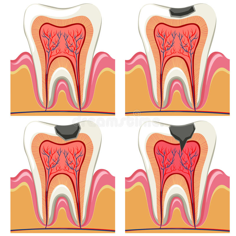 Tooth       Decay       Diagram    In Details Stock Vector  Image  62786024
