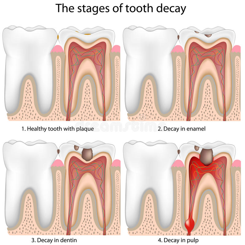 Tooth decay, eps8 stock illustration