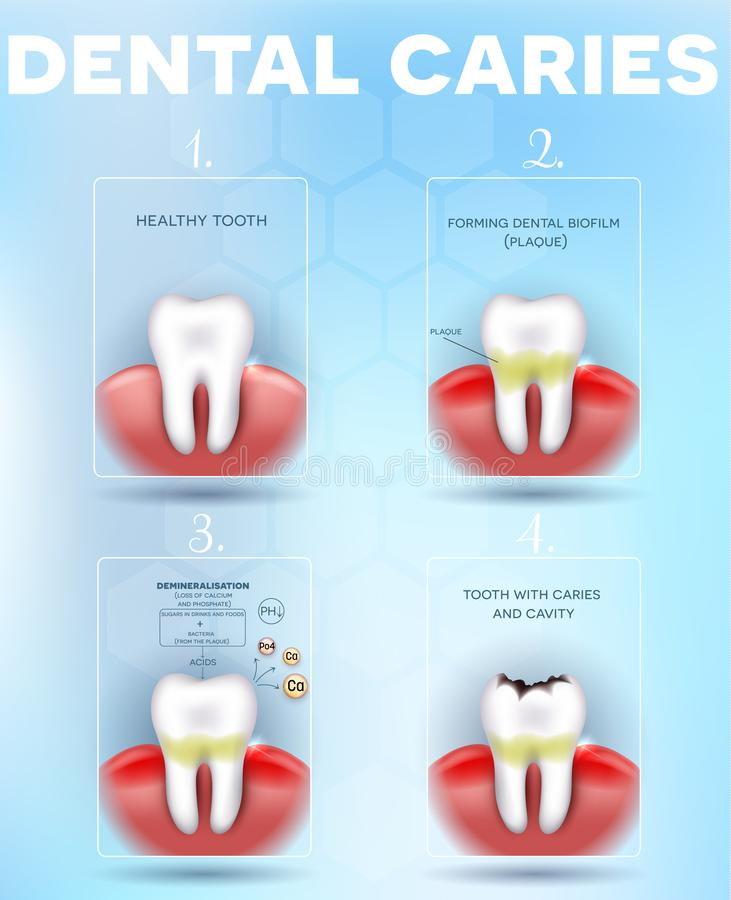 Tooth decay formation poster stock illustration