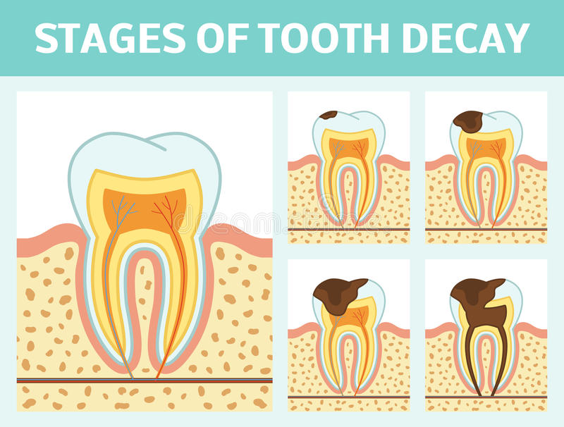 Tooth decay stages. Vector illustration of tooth decay. Four stages of dental caries vector illustration