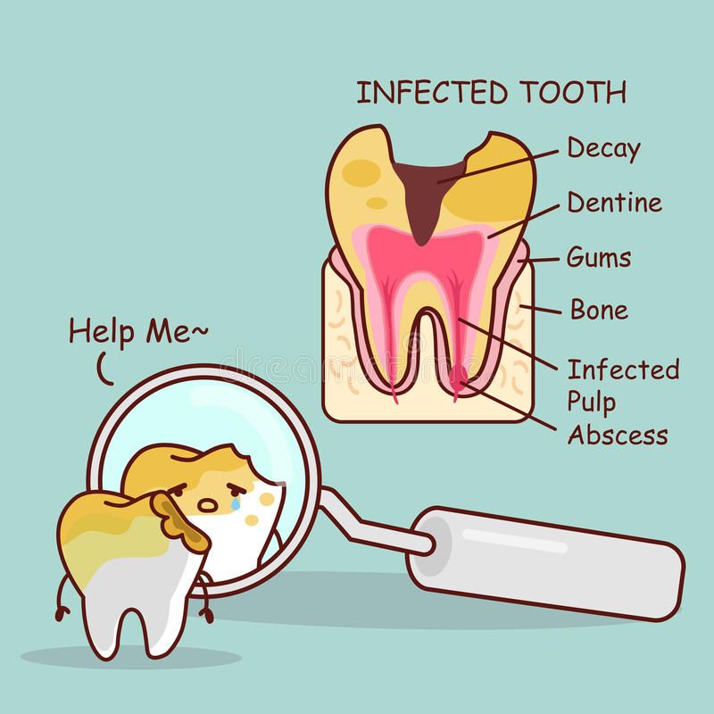 Free Tooth Decay With Health Problem Stock Photography - 86069292