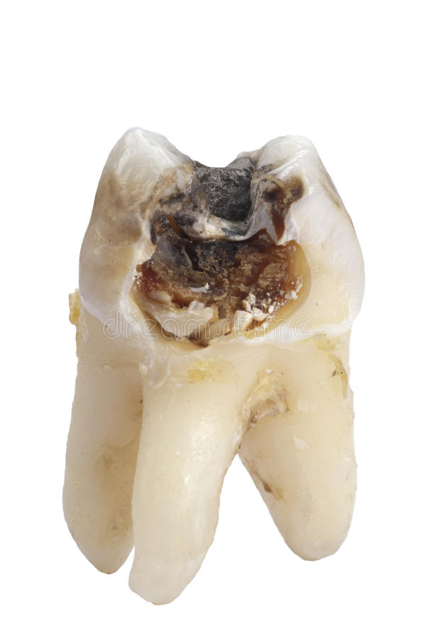 Tooth dental caries royalty free stock photos