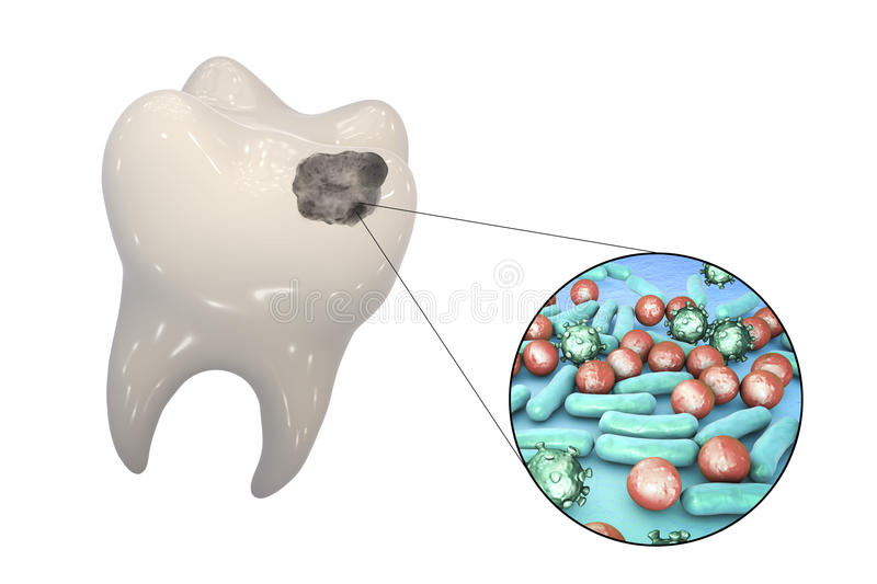 Tooth with dental caries royalty free illustration