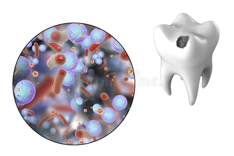 Tooth with dental caries stock illustration