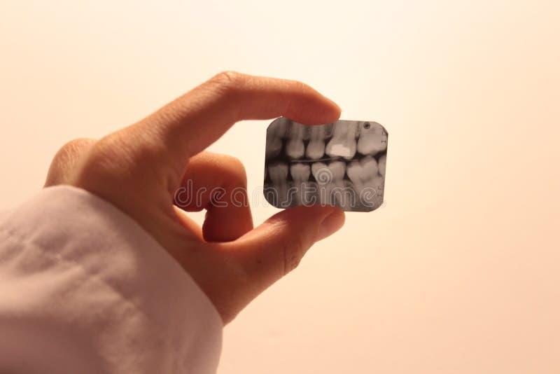 Tooth dental dentist radiograpy anatomy stock photo