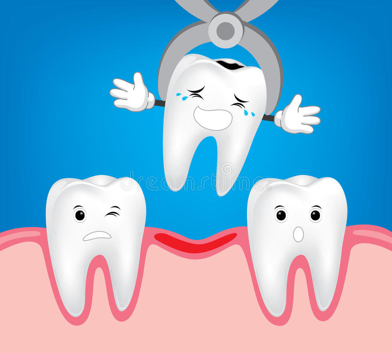 Tooth dental extraction, removal of tooth. vector illustration