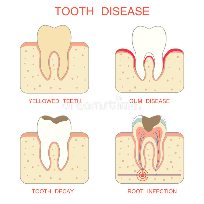 Tooth Disease Stock Vector Illustration Of Healthy 53812155