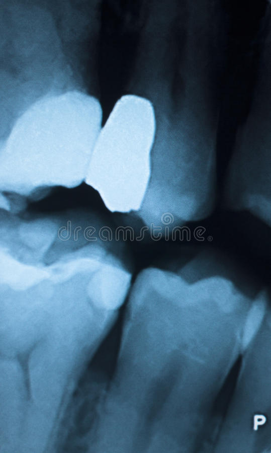 Tooth filling dental xray. Tooth with filling dental x-ray close-up image showing teeth roots, gum disease and tooth decay to enamel royalty free stock photography