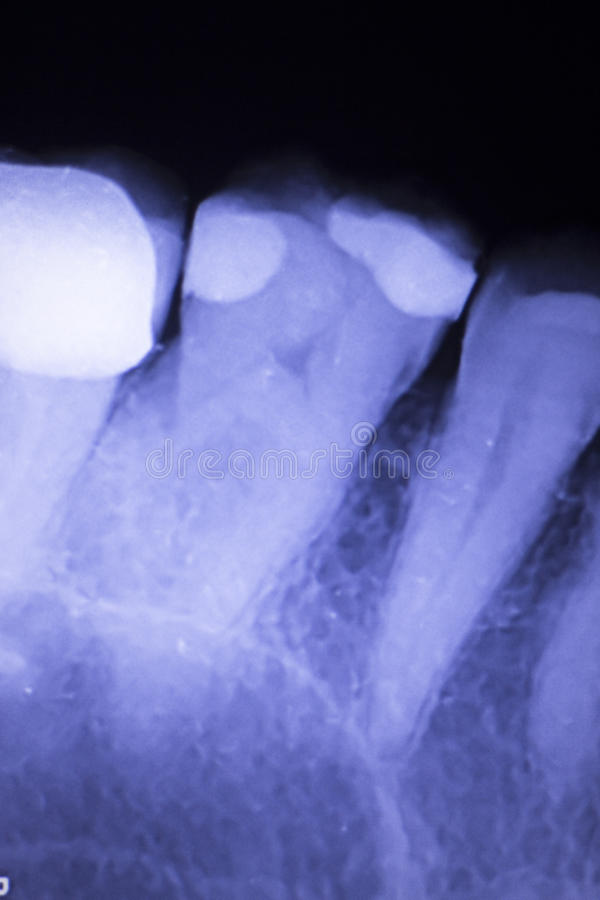 Tooth filling dental xray. Tooth with filling dental x-ray close-up image showing teeth roots, gum disease and tooth decay to enamel royalty free stock photos