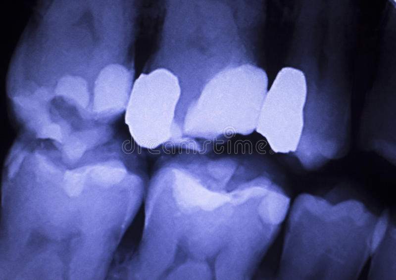 Tooth filling dental xray. Tooth with filling dental x-ray close-up image showing teeth roots, gum disease and tooth decay to enamel stock image