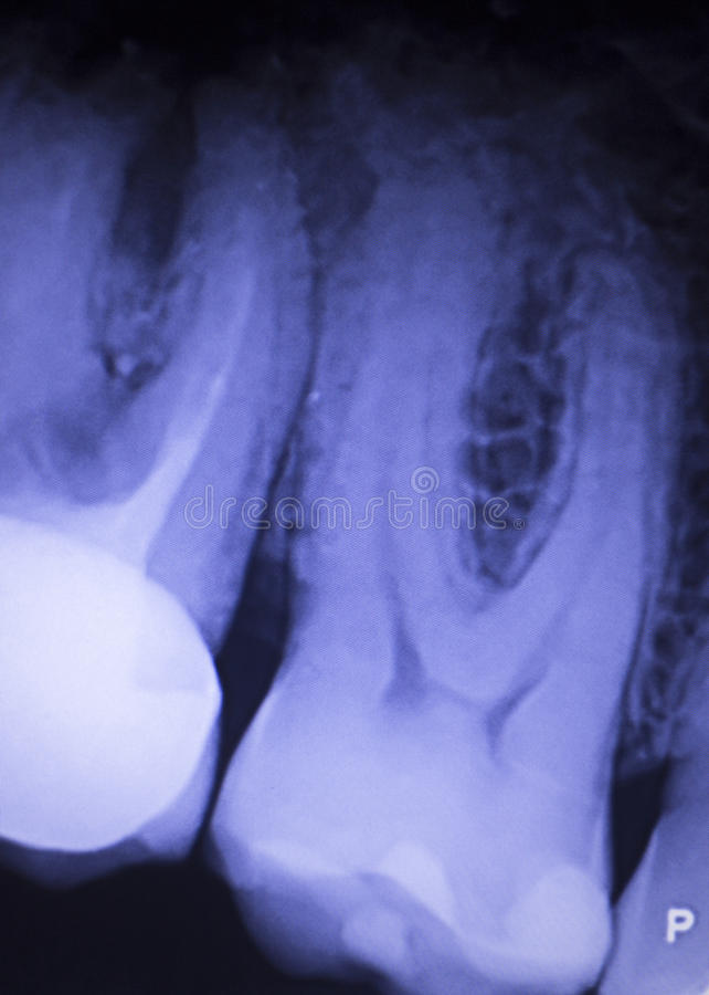 Tooth filling dental xray. Tooth with filling dental x-ray close-up image showing teeth roots, gum disease and tooth decay to enamel stock photos
