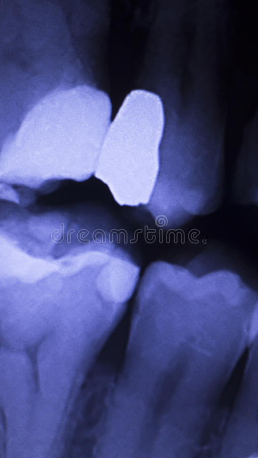Tooth filling dental xray royalty free stock photo