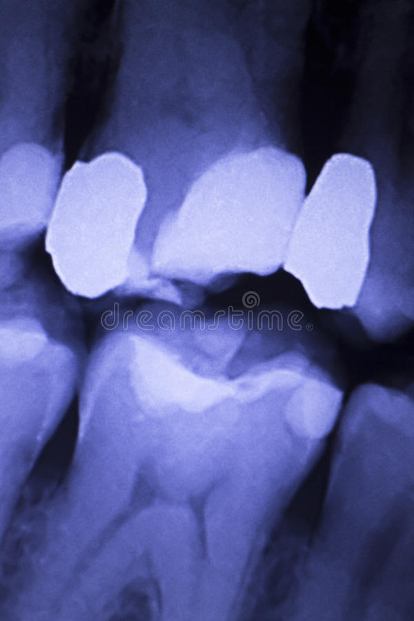 Tooth filling dental xray. Tooth with filling dental x-ray close-up image showing teeth roots, gum disease and tooth decay to enamel stock photo