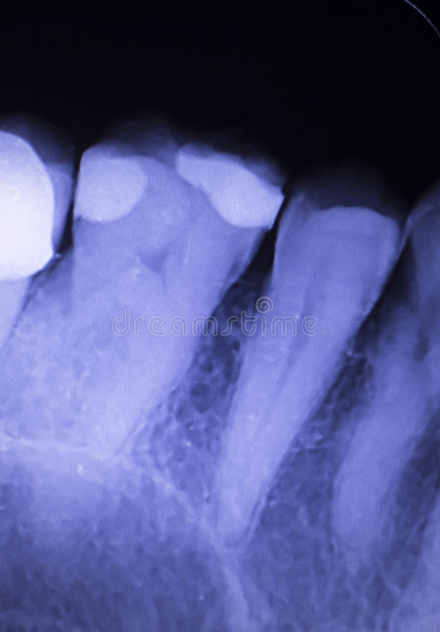 Tooth filling dental xray stock images