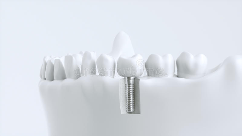Tooth human implant - 3d rendering royalty free stock images