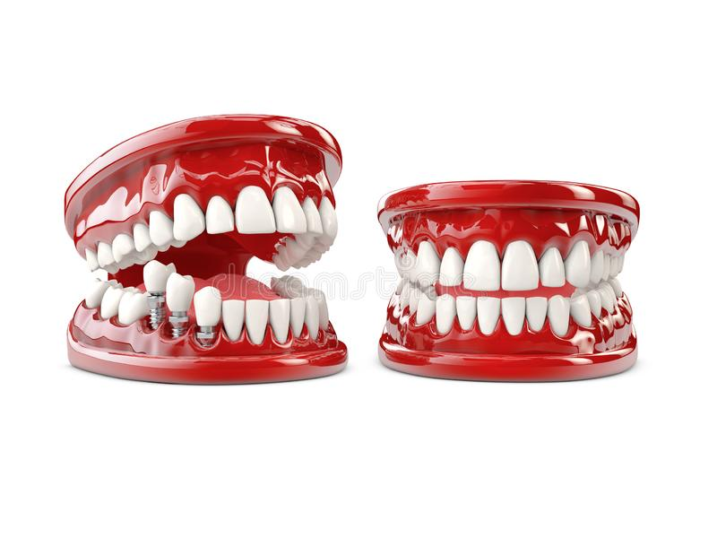 Tooth human implant. Dental concept 3d illustration royalty free stock image