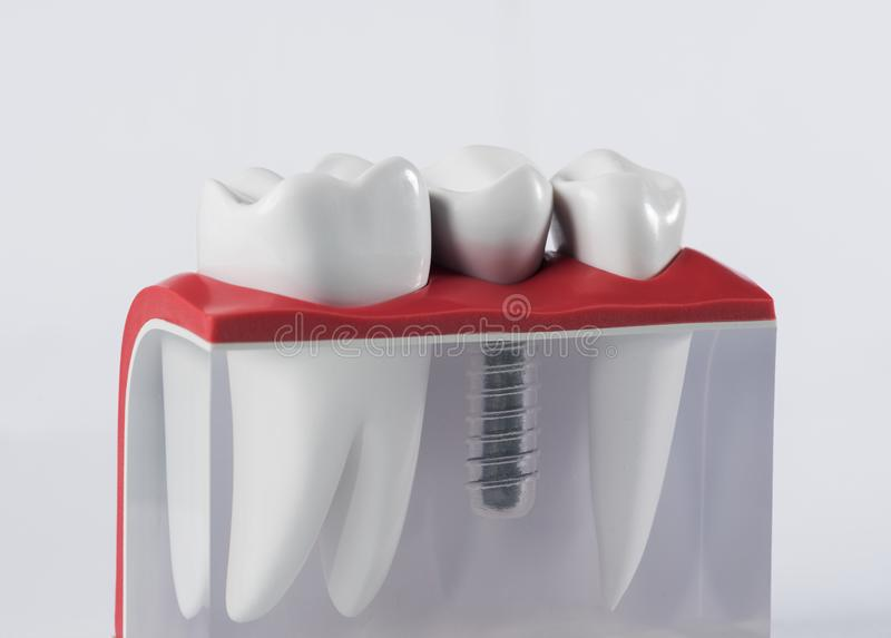 Tooth human implant. Dental concept. Human teeth or dentures. close up stock photography