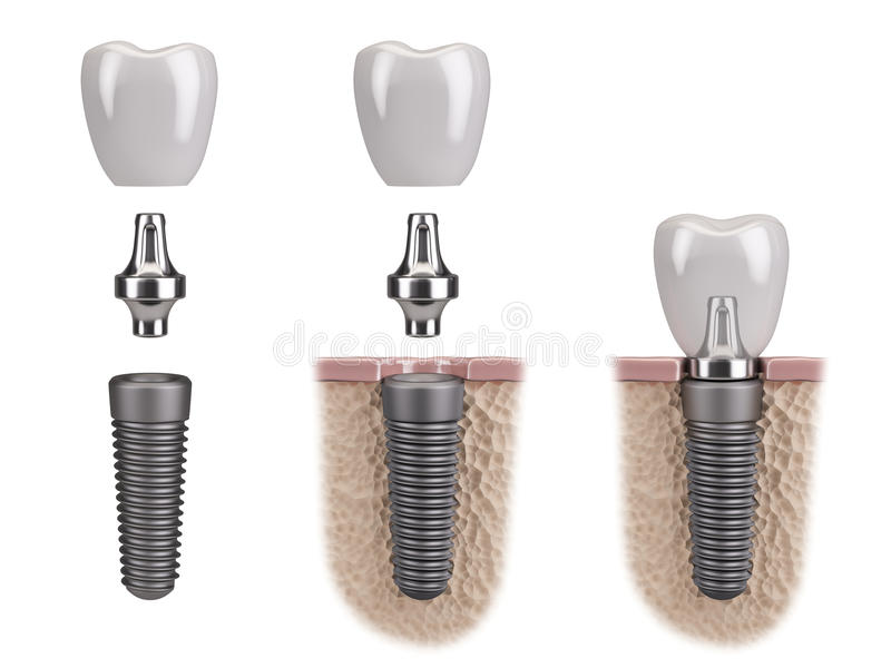 Tooth human implant royalty free illustration