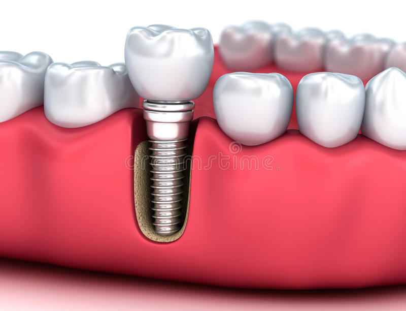 Tooth human implant, Medically accurate 3D illustration. White style stock illustration