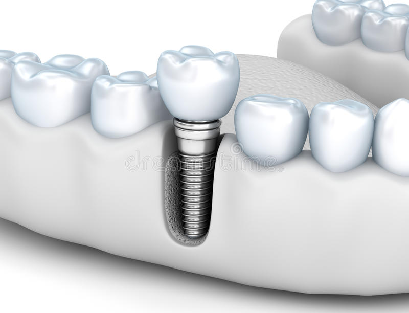 Tooth human implant, Medically accurate illustration white style. Tooth human implant, Medically accurate 3D illustration white style royalty free illustration