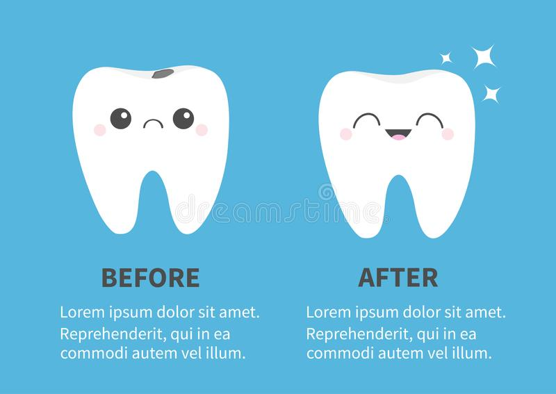 Tooth icon set. Before after Infographic Template. Shining star. Healthy smiling Crying bad ill teeth with caries. Cute cartoon. Kawaii character. Oral dental vector illustration