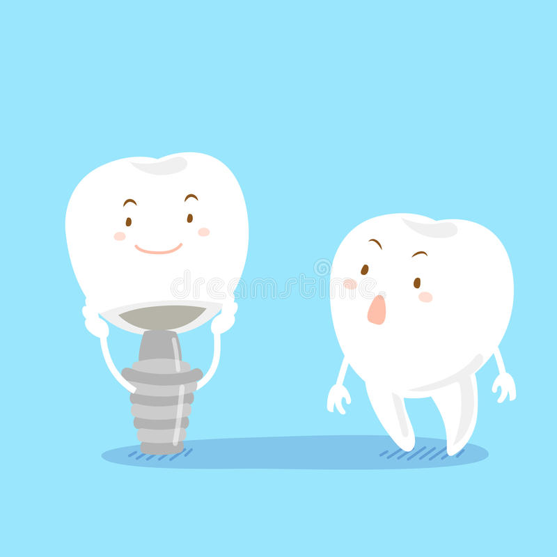 Tooth with implant. Caute cartoon tooth with implant on the blue background royalty free illustration
