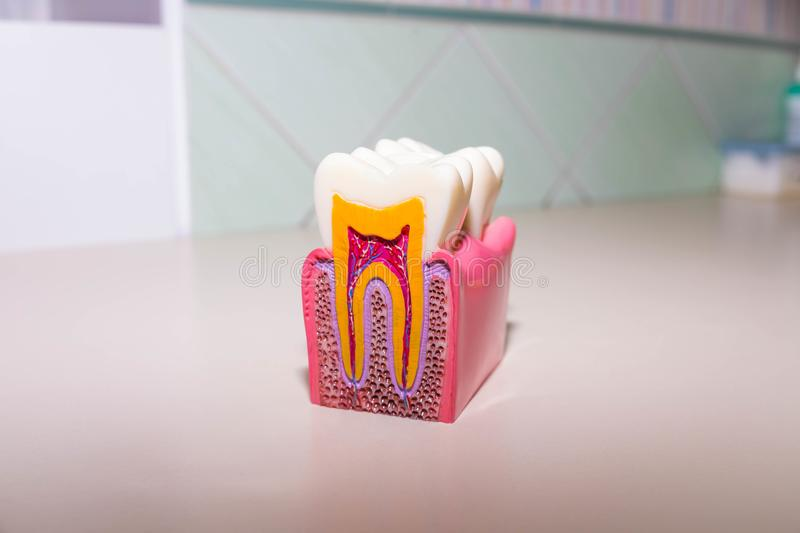 Tooth model without caries, tooth decay in dentist`s office. Healthy teeth concept . children`s dentist. Copy space. Tooth model without caries, tooth decay in stock photography