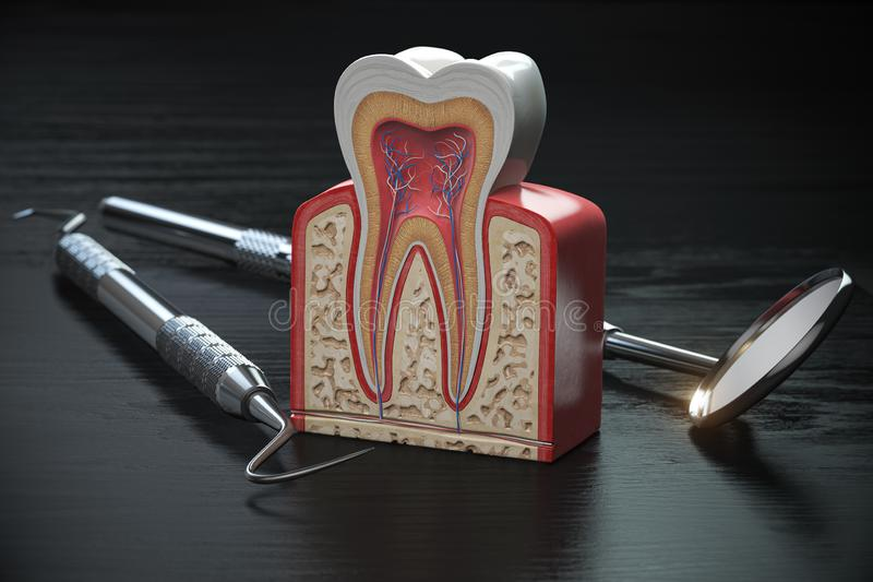 Tooth model cross section with dental tools on black wooden table. Close up. Dental treatmant and hygiene concept stock illustration
